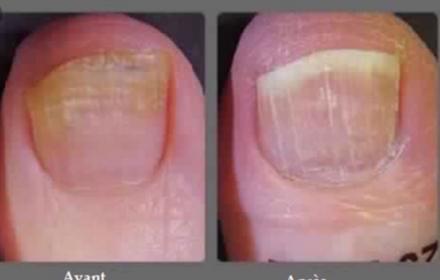 La mycose des pieds et des ongles :  Votre podologue à CLAMART peut vous renseigner !