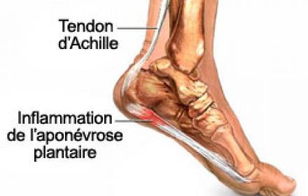 Douleur au niveau de la voute plantaire ou au niveau du tendon d'achille et si c'etait une myoaponevrosite plantaire???